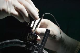 Cirugía funcional del Parkinson mediante la técnica estereotáxica, llevada a cabo por un equipo multidisciplinario en el Hospital Clínico Quirúrgico Lucía Íñiguez Landín, de la ciudad de Holguín, Cuba, el 20 de febrero de 2017. ACN FOTO/Juan Pablo CARRERAS/sdl